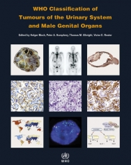 WHO Classification of Tumours of the Urinary System and Male Genital Organs