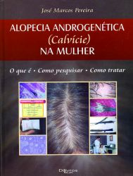 ALOPECIA ANDROGENÉTICA (CALVÍCE) NA MULHER