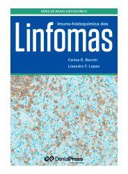 Imuno-Histoquímica dos Linfomas