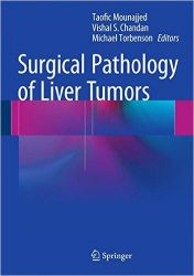 Surgical Pathology of Liver