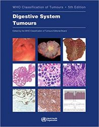 WHO Classification of Tumours of the Digestive System, 5ªedição/2020