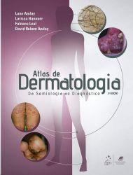 AZULAY - ATLAS DE DERMATOLOGIA DA SEMIOLOGIA AO DIAGNÓSTICO